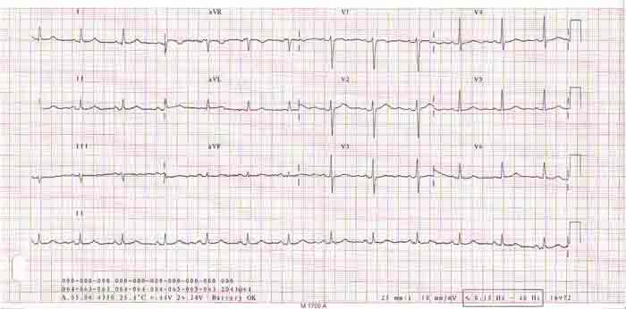 Electrocardiograma de doce derivaciones