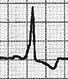 Onda delta al inicio de la onda R típica del WPW