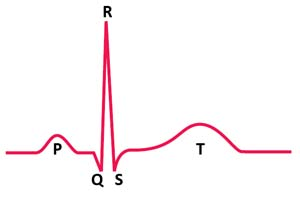 Complejo P-QRS-T