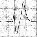 ECG en alteraciones del potasio