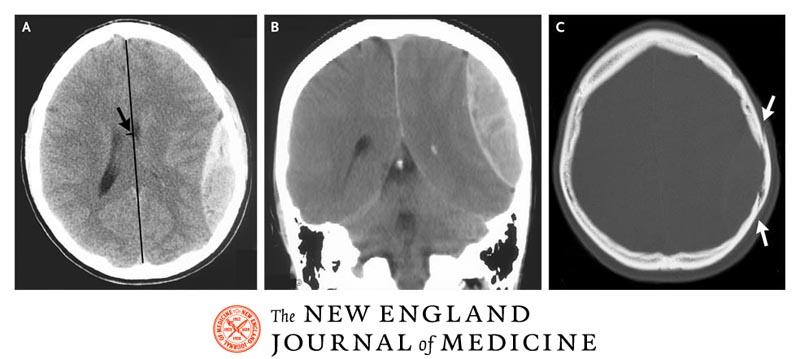 Escáner de un hematoma epidural