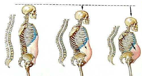 Disminución de la altura por fracturas vertebrales