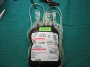 Bolsa de sangre completa recién extraída. Cortesía de mojavedesert @ flickr.com
