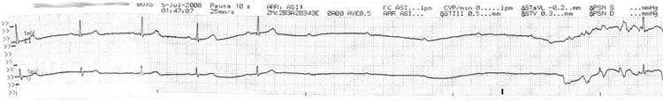 Tira de ritmo de un bloqueo AV grado III (completo)