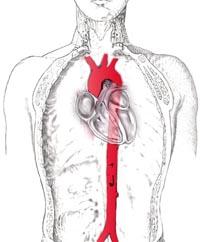Aorta abdominal, torácica y cayado