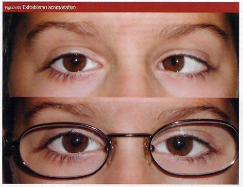 Chica con estrabismo acomodativo (por defecto de refracción) corregido con gafas