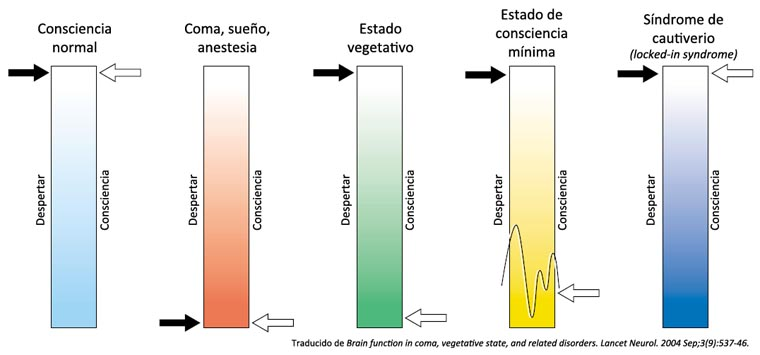 Gráfico del despertar y la consciencia en las distintas patologías: coma, estado vegetativo, síndrome de cautiverio...