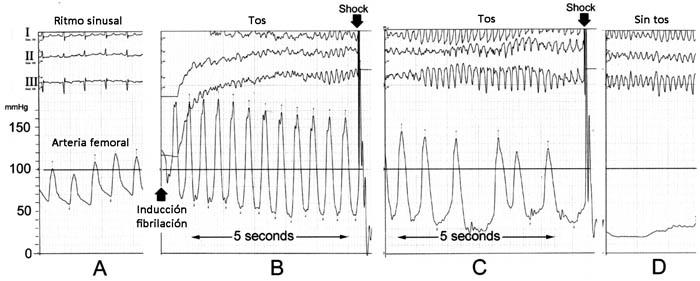 Registro de ECG y presión arterial (femoral) con tos durante fibrilación ventricular